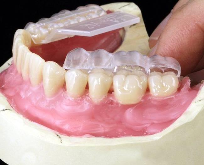 Все о силиконовых зубных протезах, отличие от капроновых и термопластических искусственных зубов