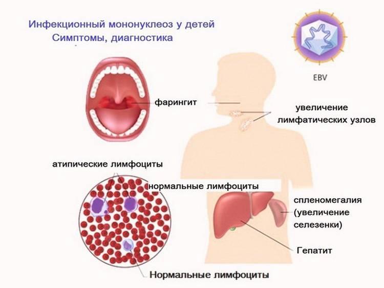 Чем опасен герпес внутри губы: причины, симптомы и лечение