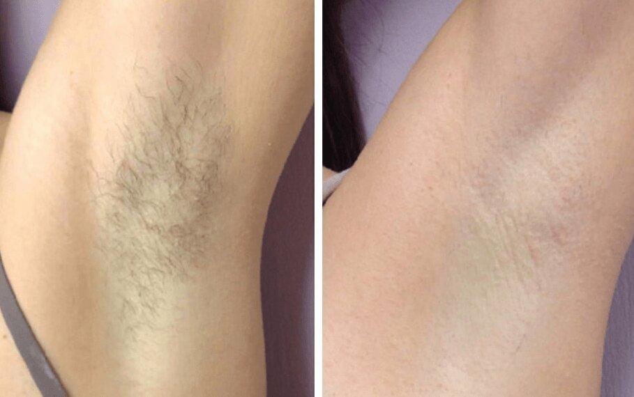 Надёжный способ удалить волосы с лица: кому рекомендовано делать электроэпиляцию
