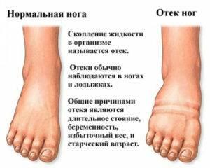 Могут ли отекать ноги при климаксе причины появления и лечение