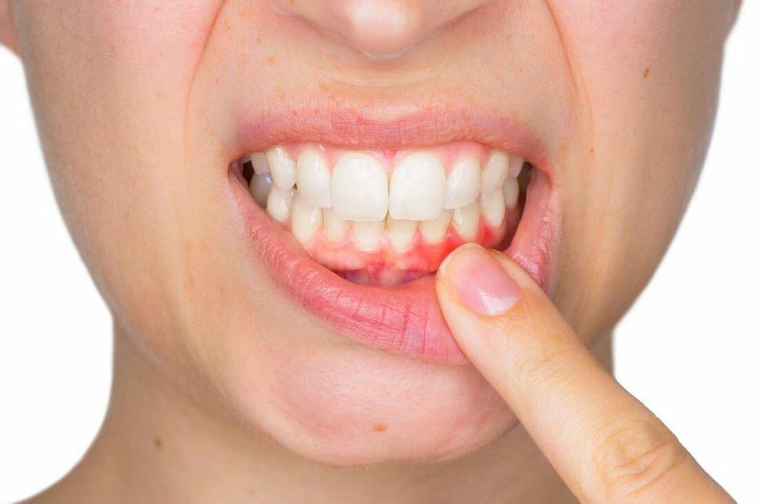 Пузырьки во рту на слизистой: откуда проблема и что делать?