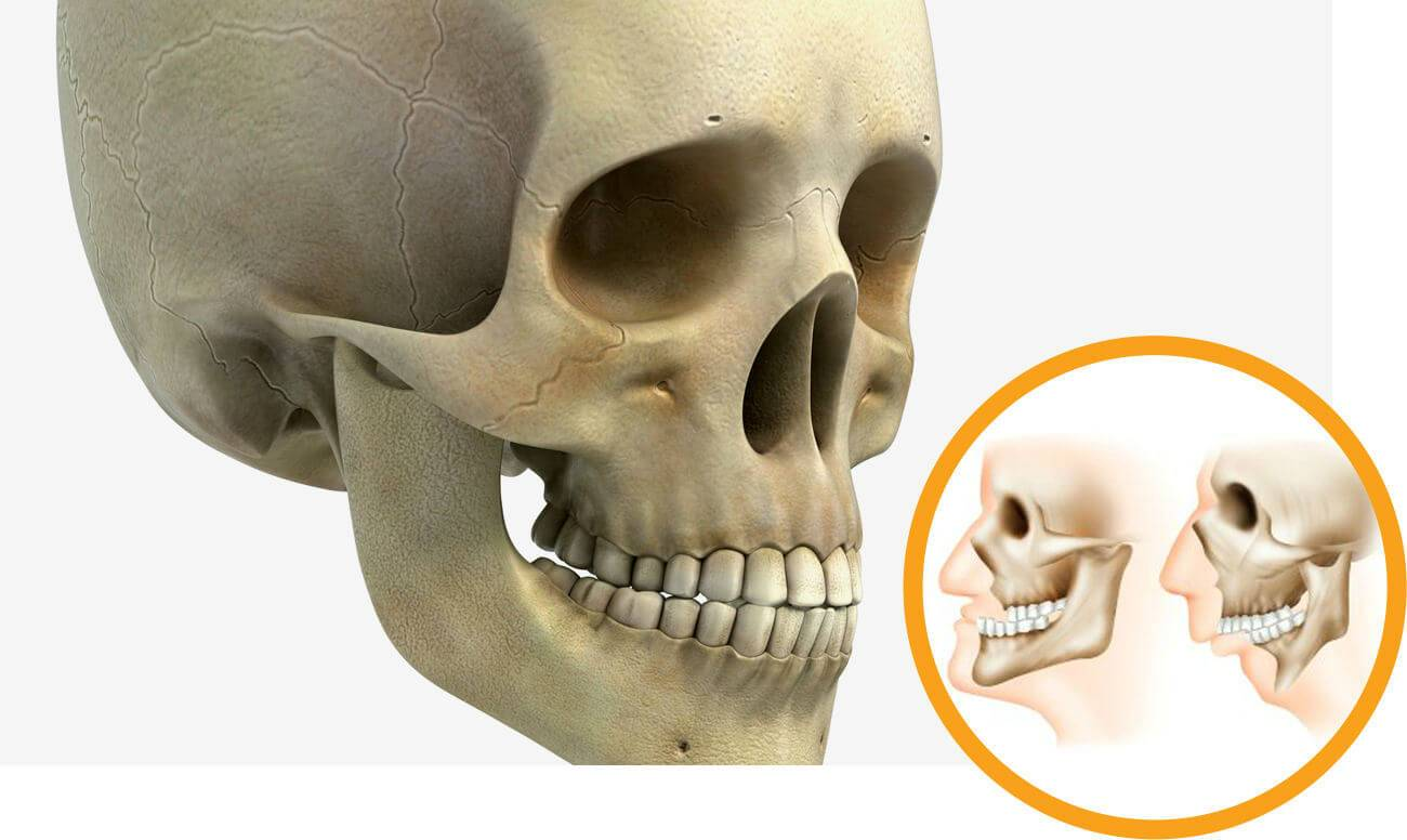 Аномалии развития и деформации челюстей