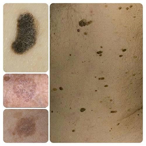 Виды новообразований кожи: советы о том, как уберечь себя от их появления