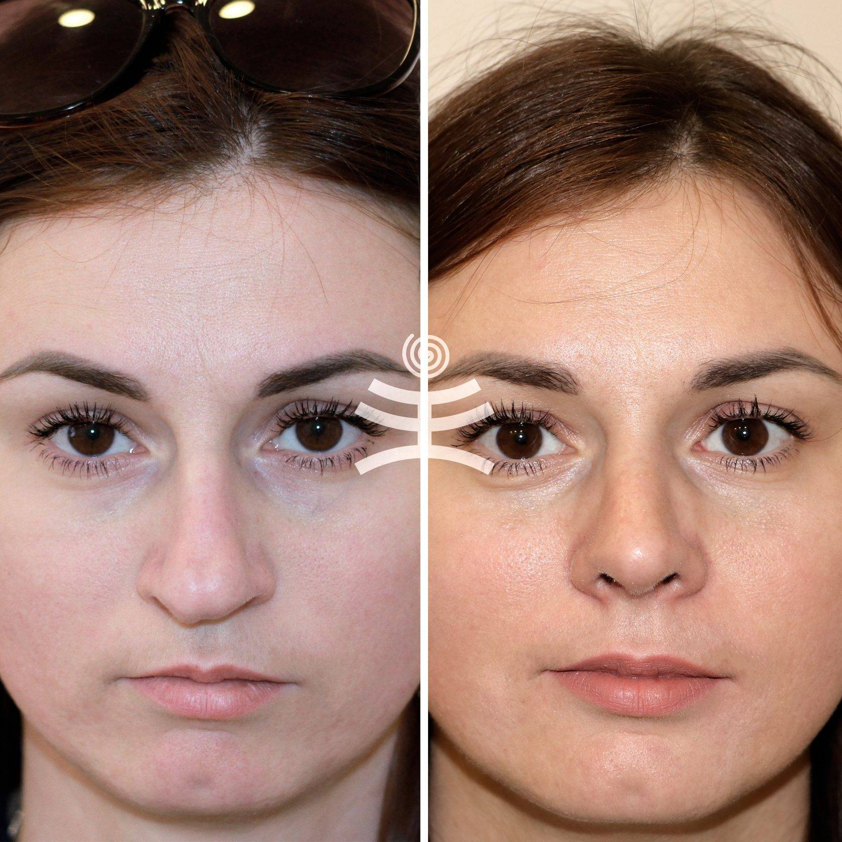 Операция по исправлению носовой перегородки