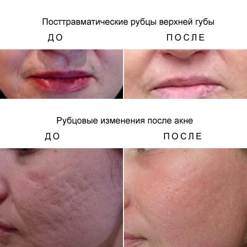 Как убрать шрамы и рубцы на лице в домашних условиях ≡ блог клиники mlc