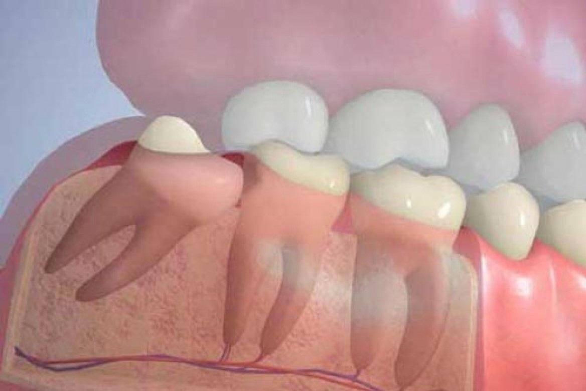 Как проходит удаление зуба мудрости и почему не стоит его бояться