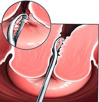 Как проводится операция по удалению полипа в матке?