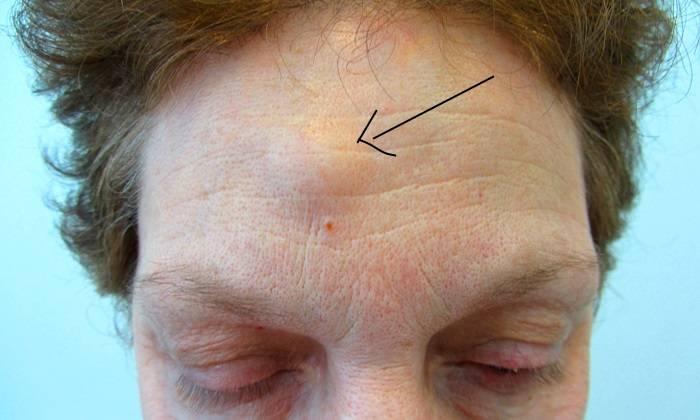 Шишка на лице под кожей: причины появления, методы лечения, советы