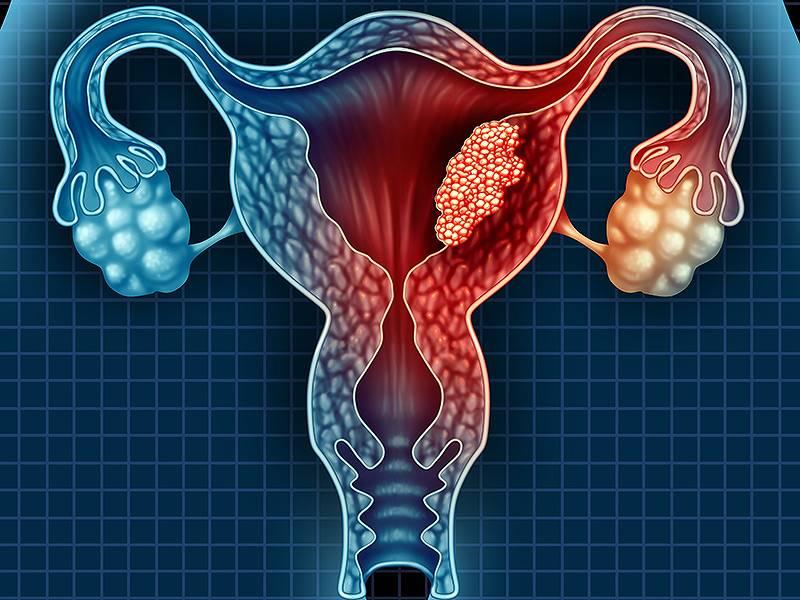 Рак матки: симптомы и признаки, прогноз жизни на разных стадиях