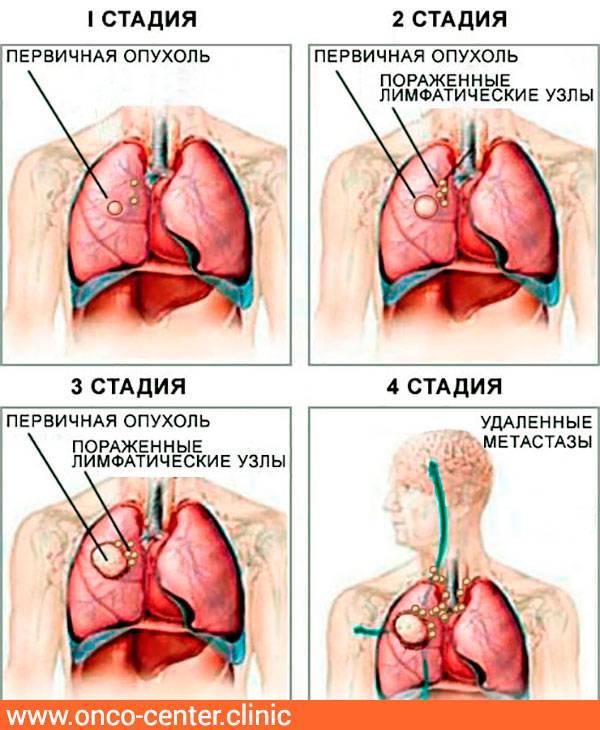 Как определяются стадии рака и какая классификация — самая точная?