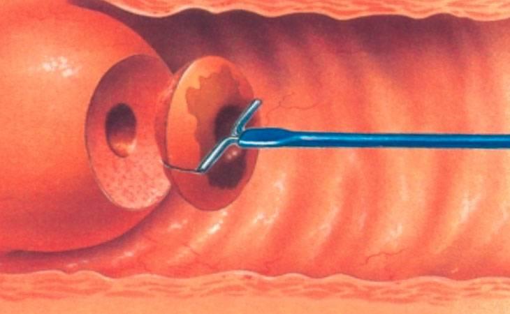 Что такое полипэктомия, когда и как проводится?