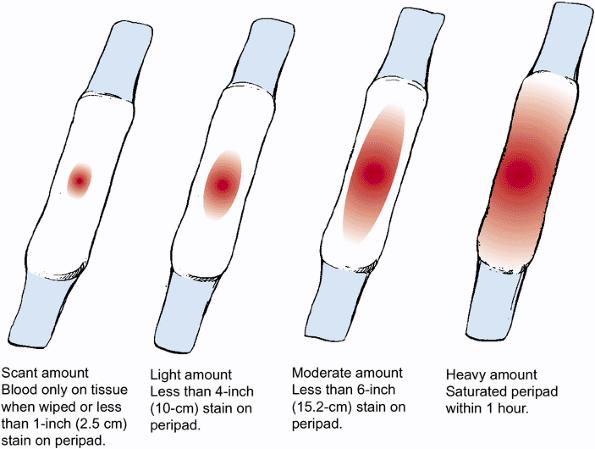 Обильные месячные или кровотечение — как не пропустить тревожный сигнал организма?