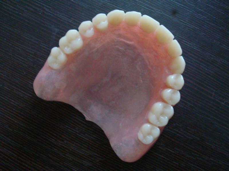 Частично-съемные протезы— качественное восстановление потерянных зубов