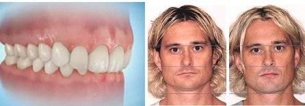 Отсутствие зубов – последствия и
