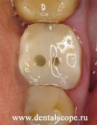 Как делают зубы на штифтах от а до я – поэтапное описание