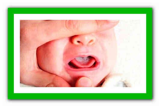 Белый язык у новорожденного