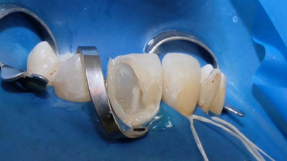 Все, что нужно знать о титановом штифте в стоматологии