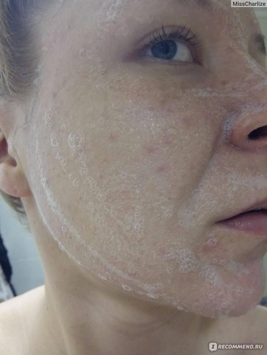 Идеальное лицо после биоревиталиции — это реальность?