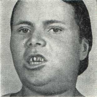 Флегмоны и абсцессы челюстно-лицевой области