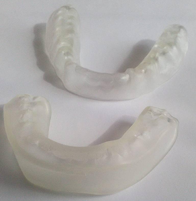 Капа от бруксизма для зубов: как использовать, эффективность