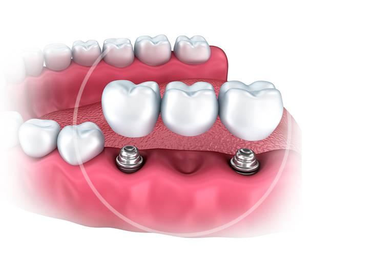 Как можно вернуть улыбке красоту? имплант или мост: что лучше?