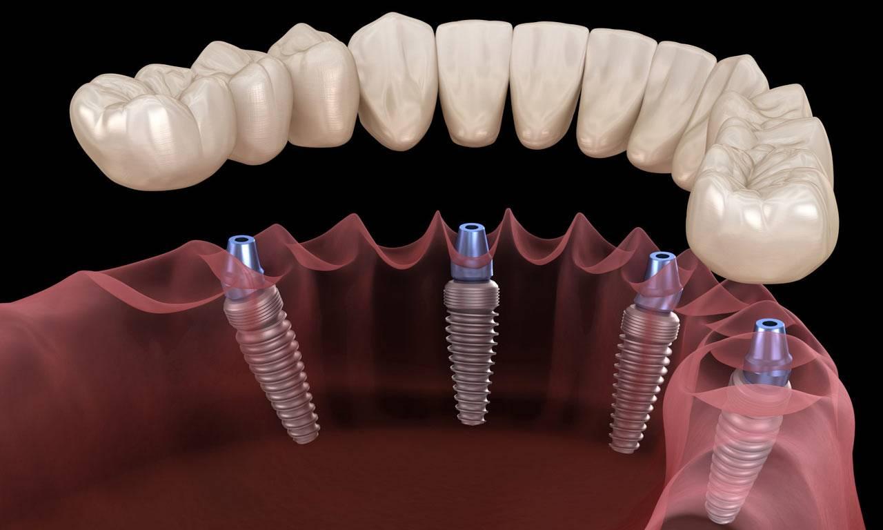 Срок службы имплантов зубов в среднем