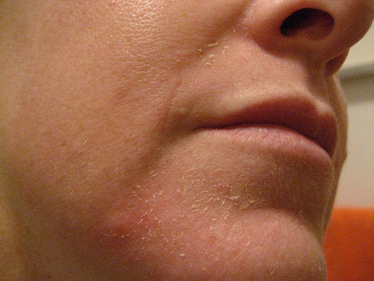 Краснеет лицо и в зоне декольте. почему краснеет шея и зона декольте. профилактика появления красноты