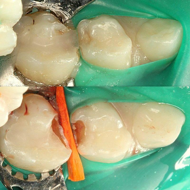 6 причин, из-за которых болит зуб под пломбой: что это может быть?