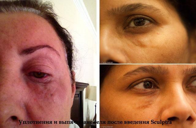 Коррекция носослезной борозды филлерами: что нужно знать перед походом к косметологу