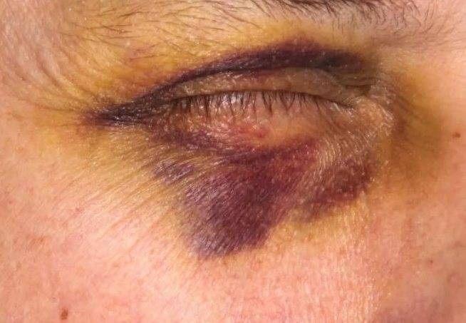Методы избавления от опухоли губы после удара или ушиба