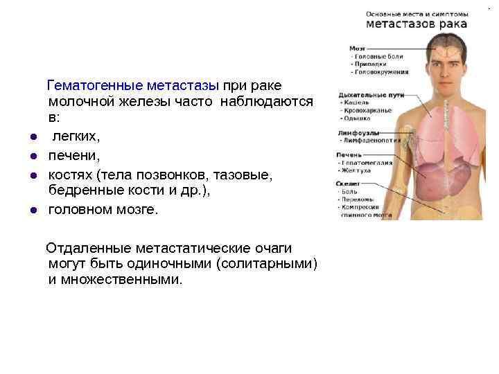 Метастазы в костях