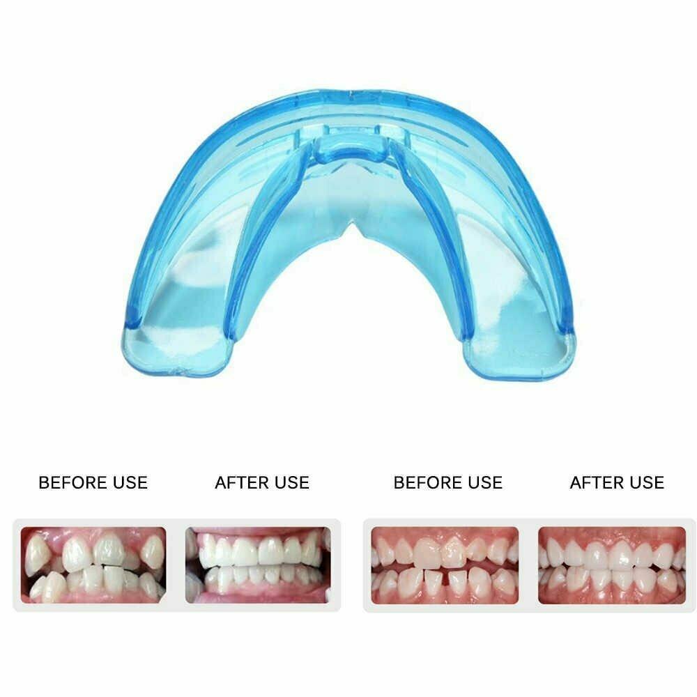 Исправление прикуса и выравнивание зубов капами у детей и взрослых: особенности, фото до и после