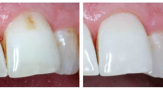 Как лечат кариес между зубов – самую сложную форму кариозного поражения