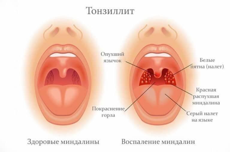 Почему болит гланда с одной стороны и чем лечить воспаленную миндалину?