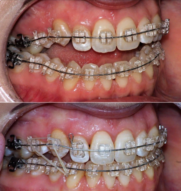 Как называется врач, который ставит брекеты? профессия — врач-ортодонт.