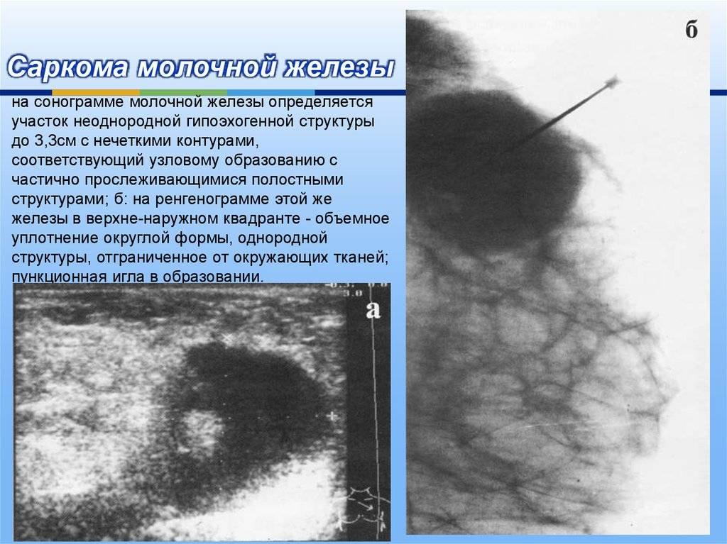 Узлы в грудной железе у женщин: узловой фиброз и аденоз, узелковая мастопатия