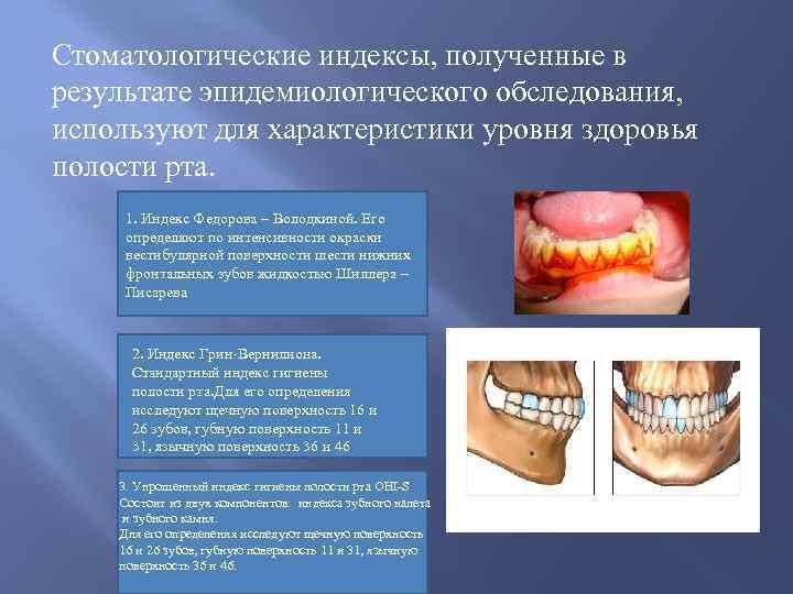 Распространенность и интенсивность кариеса зубов