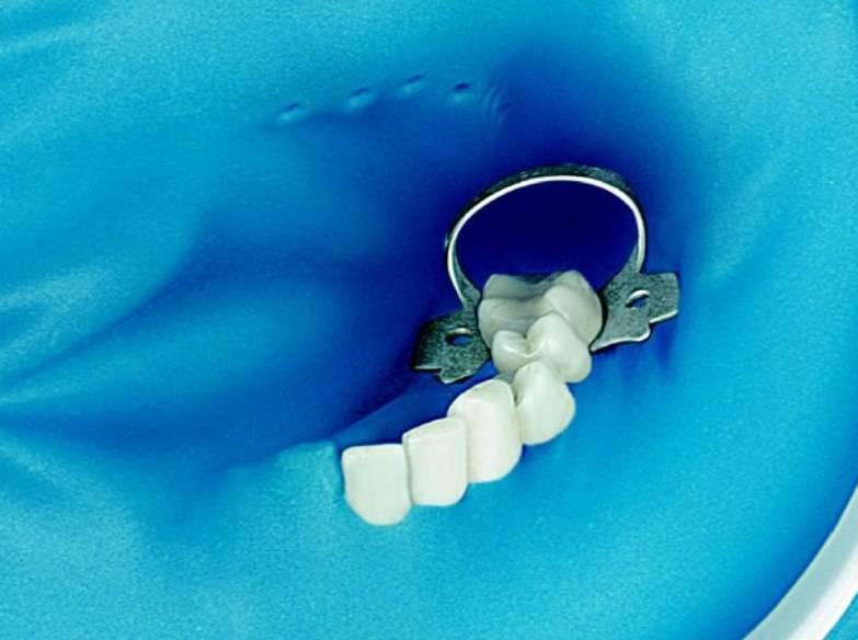 Коффердам в стоматологии и наложение коффердама, что это такое?