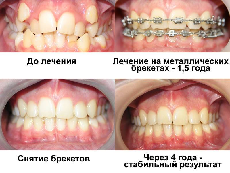 Ставят ли брекеты только на одну из челюстей?