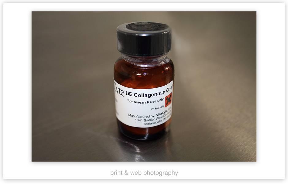 Препарат коллагеназа при болезни пейрони