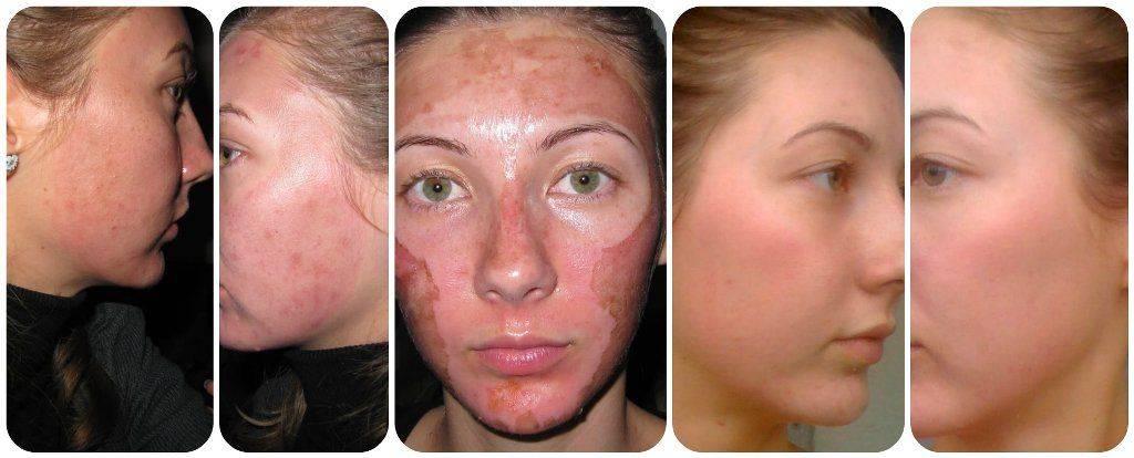 Срединный пилинг — очищение и омоложение кожи