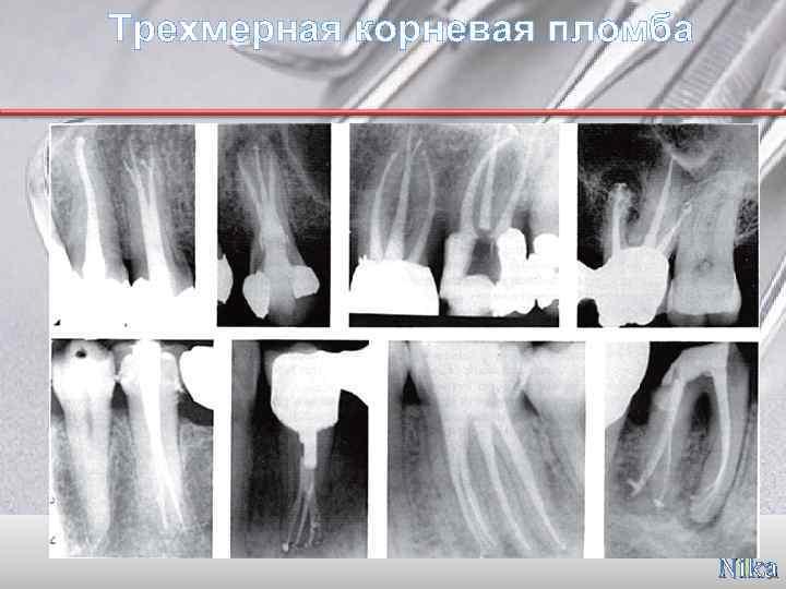 Пломбирование каналов зубов и современные методы пломбировки