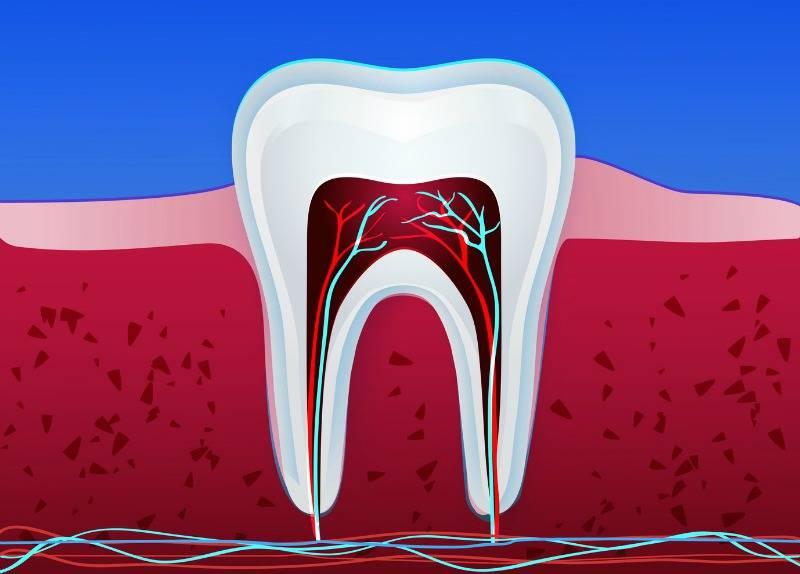 Можно ли вылечить кариес корня зуба и как лечат корневой