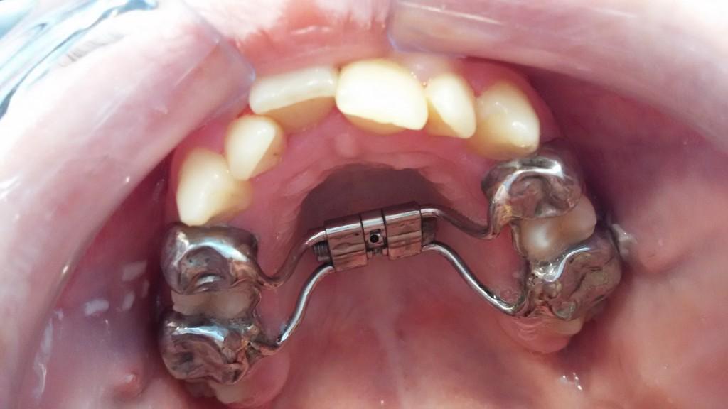 Методы расширения челюсти у взрослых и детей с помощью аппаратов и операций
