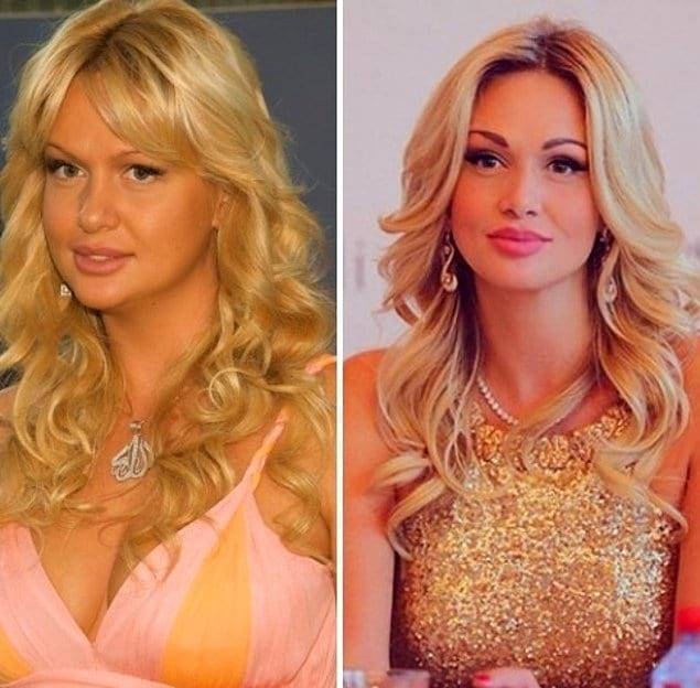 Виктория лопырёва до и после пластики: фото