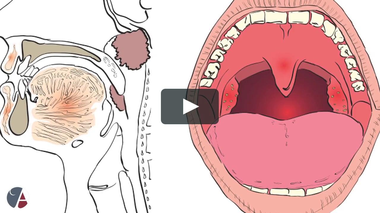 Рак миндалин: стадии заболевания, симптоматика, способы лечения, профилактика