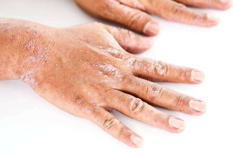 Дерматит на лице: разновидности патологии и особенности лечения