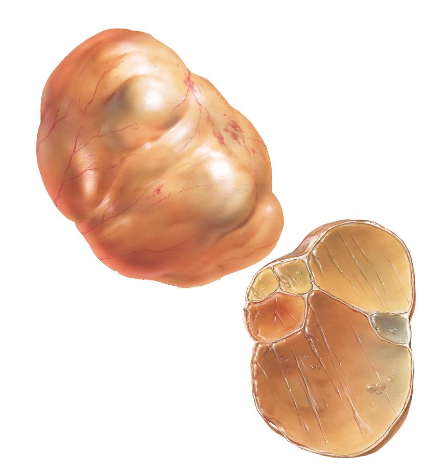 Как образуется цистаденома яичников и способы терапии