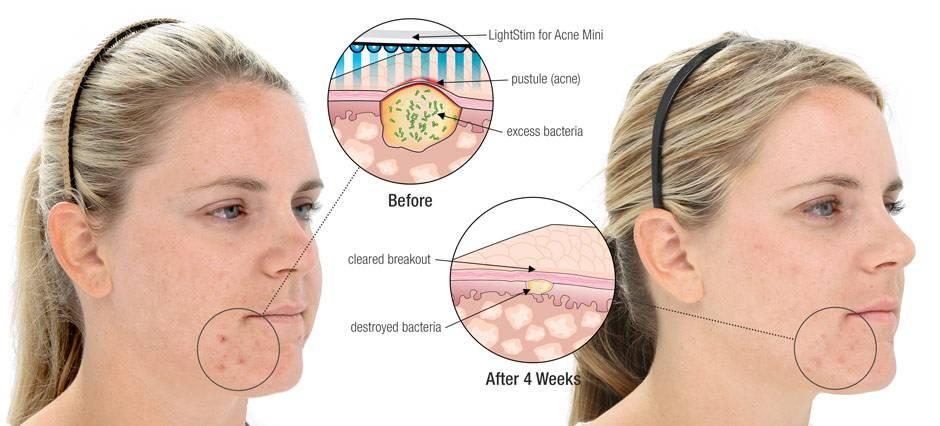 Причины жирной кожи лица у мужчин и женщин