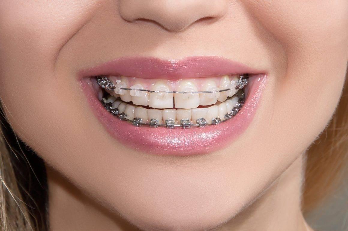 Американ ортодонтикс — прочные брекеты для исправления изъянов
